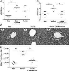 testosterone suppresses hepatic inflammation by the downregulation