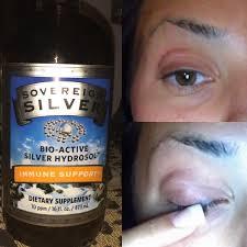diy eye stye remover youtube
