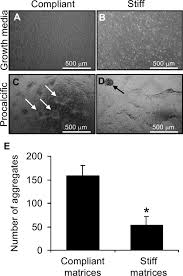 calcification by valve interstitial cells is regulated by the