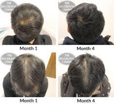 propecia success stories hair loss colchicine wikipedia the