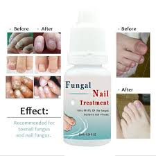100 plant extracts feet care nail treatment liquid toe nail