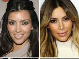 best 25 kardashian plastic surgery ideas on pinterest beyonce