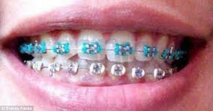 fake braces trend status symbol asian teenagers
