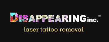 tattoo removal inc disappearing inc brings laser tattoo removal guarantee to greater
