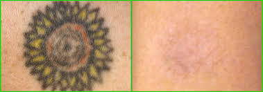 laser tattoo removal tyler texas