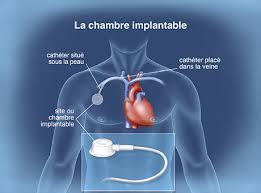 chambre d implantation pour chimio chambre implantable chimiotherapie elisabeth laprugne garcia ppt