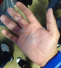 Nails Is Nuts The Daily Upper Decker - just another reason why catching a home run ball isn t that