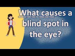 Temporary Partial Blindness What Causes A Blind Spot In The Eye Top Health Faq Channel