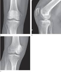 Fibular Avulsion Knee Simon U0027s Emergency Orthopedics 7e Accessphysiotherapy