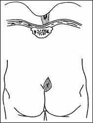 pilonidal cyst location pilonidal cysts surgery austin pilonidal sinuses pilonidal