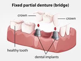 crowns and bridges dentist orlando orlando smiles