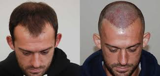 best hairtransplant in the world steven fletcher s hair transplant result harley street hair clinic