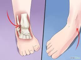 High Ankle Sprain Anatomy High Ankle Sprains Syndesmosis Injury U2013 Footnotes Publishing