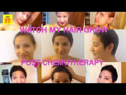 hair growth after chemo pictures after chemotherapy is it possible to grow hair again youtube