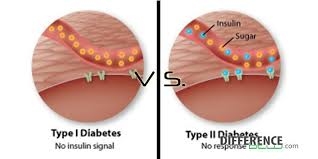 Can Stroke Cause Blindness 10 Myths About Diabetes
