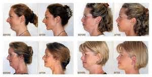 hairstyles for sagging jowls hairstyles