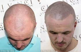 bald guys are discovering micro scalp pigmentation complex