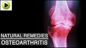 best medicine for inflammation aches u0026 pains osteoarthritis arthritis or joint pain natural
