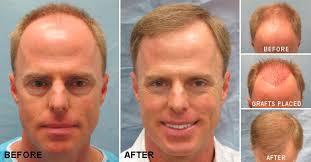 hair transplant america before after hair transplant photos bernstein medical