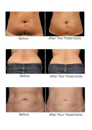 red light therapy cellulite lipo laser collagen clinique morayfield