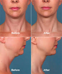 how to make a double chin look less noticable eith hair belkyra double chin injectable eaglesmed wellness centre