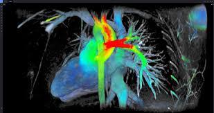 most innovative new imaging technology at rsna 2015 imaging