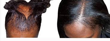 the thin hair african american thinning black hair 2018 forensicanth com forensicanth com