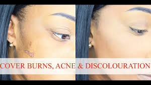 how to colour in a scar in your hairline how to cover burns scars acne colour correct iamshe youtube