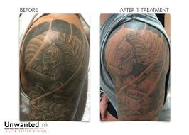 tattoo removal shoulder tattoo removal gallery unwanted ink laser tattoo removal