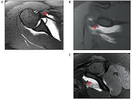How To Palpate Subscapularis Musculotendinous Junction Tears Of The Subscapularis A Report Of