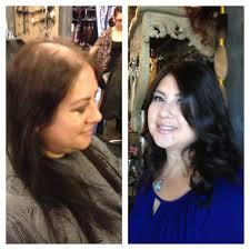 best haircut for alopecia baldness in women hair haircare health beauty baldness