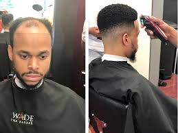 before and after thinning mens haircut man weaves offer cover for balding men cash for black hair care
