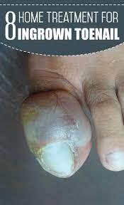 best 20 ingrown toenail treatment ideas on pinterest ingrown