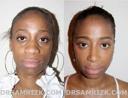 african american african american rhinoplasty in nj pa african american nose job