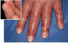 allergic to nail polish symptoms how you can do it at home