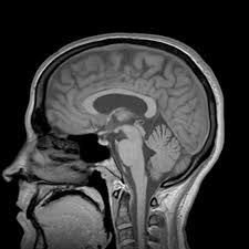 Sagittal Brain Mri Anatomy 3t Imaging Radiology Imaging Morton Grove Mri Ct Scan Part