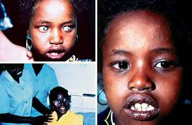 Cataract Leads To Blindness Due To Community Eye Health Journal Prevention Of Childhood Blindness