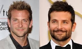 hair plugs for men has bradley cooper had a hair transplant celeb hair transplants