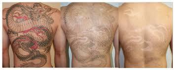 laser tattoo removal san diego tattoo removal los angeles oc