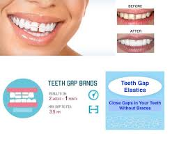 goody bands for teeth orthodontic gap teeth bands 3 16 heavy with floss