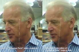 plastic hair joe biden s hair loss elects hair transplants makemeheal
