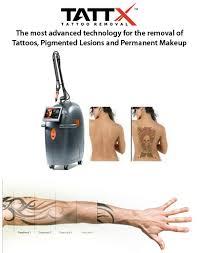 laser tattoo removal tattx clarity medspa