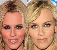 does jenny mccarthy have hair extensions with her bob jenny mccarthy s face after plastic surgery there s no wrinkles