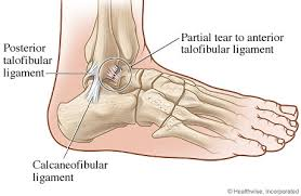 Collateral Ligaments Ankle What Is A Sprain Woodstown Massage
