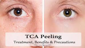 tca peeling treatment details benefits precautions u0026 side
