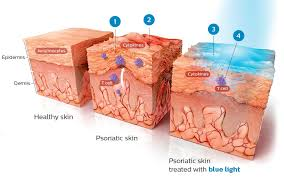 psoriasis and ultraviolet light philips psoriasis vulgaris treatment blue light therapy philips