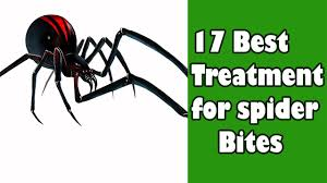 17 Best Images About Spider - 17 best treatment for spider bites spider bite treatment youtube