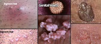 yellow puss filled ingrown hair ingrown hair on vagina lips labia minora majora bump prevent