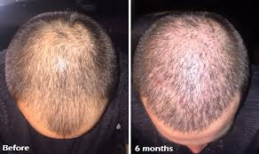 hair transplant month by month pictures 6 months post op 4k fue hair transplant zero growth