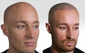 pics of scalp micropigmentation on people with long hair scalp micropigmentation medical weight loss clinic denver